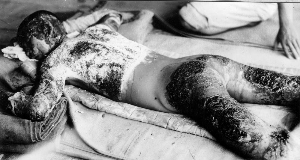 Atominio sprogimo Hirošimoje aukos